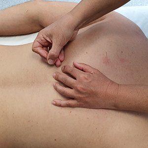 acupunctuur behandeling silva praktijk