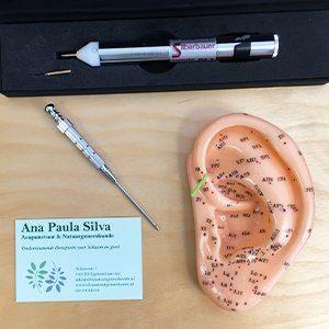 acupunctuur hulpmiddelen ana paula silva natuurgeneeskunde en acupunctuur